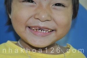 http://nhakhoa126.com/hinhanh/rang-tre-em/nha-khoa-rang-sua-bi-sau-10.jpg