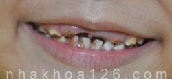 http://nhakhoa126.com/hinhanh/rang-tre-em/nha-khoa-rang-sua-bi-sau-11.jpg