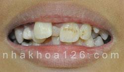 http://nhakhoa126.com/hinhanh/rang-tre-em/nha-khoa-rang-tre-em-moc-lech.jpg