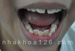 http://nhakhoa126.com/hinhanh/rang-tre-em/nha-khoa-rang-tre-em-moc-lech01.jpg