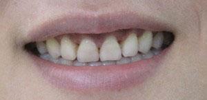 http://nhakhoa126.com/hinhanh/tin%20tuc/nha-khoa-smile.jpg